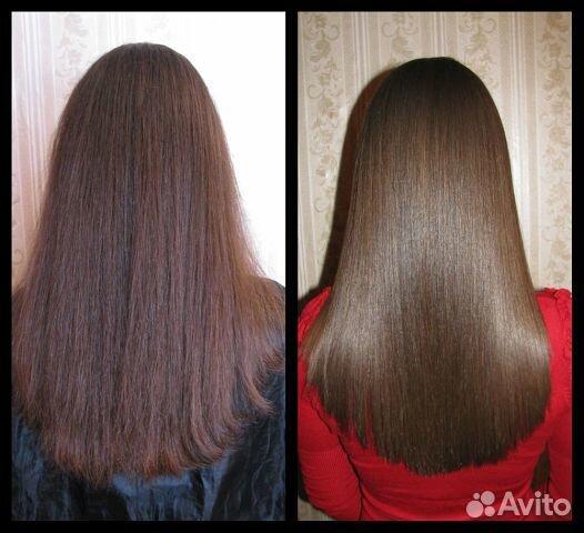 Народное средство против выпадение волос
